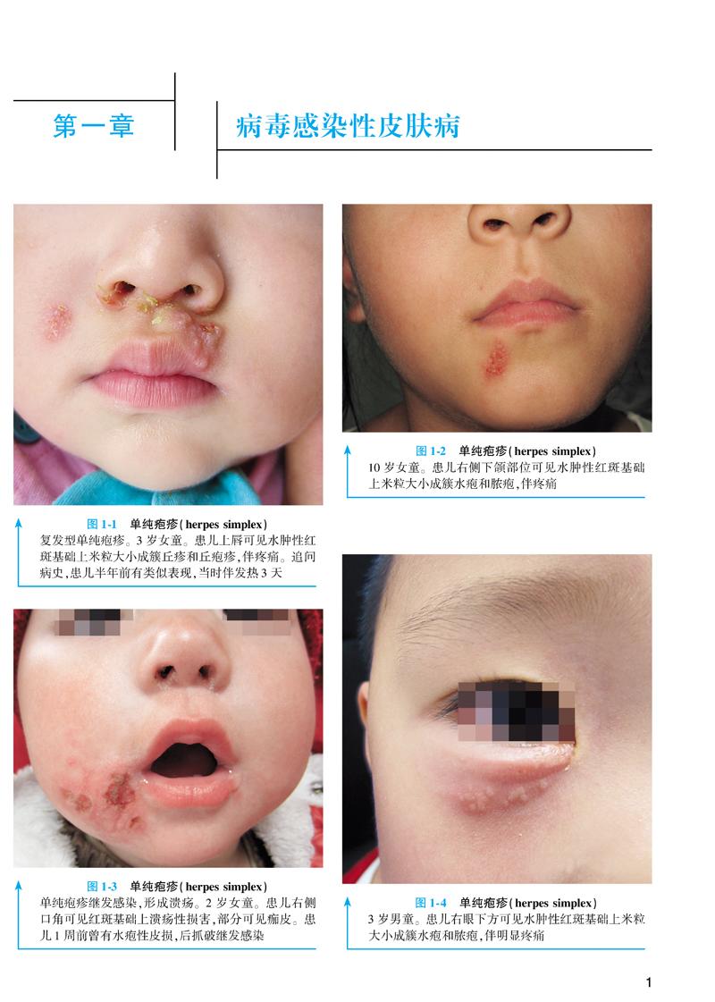 儿童皮肤病彩色图谱(第2版) 马琳,徐子刚 9787117245173 人民卫生出版